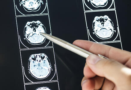 What is Alzheimer's Disease? A Brief History